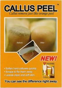 Callus_Peel_Post_4cb58996017aa